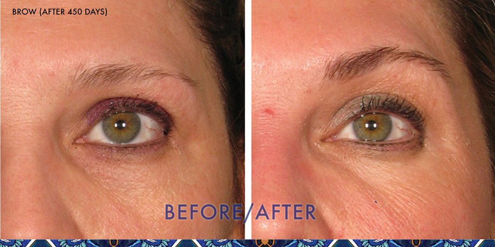 ultherapy eyebrow lift reviews ResouLuna Orlando Winter Park FL