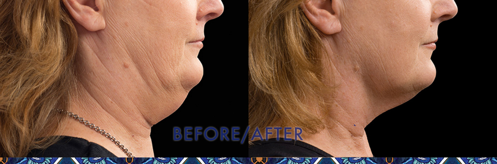 How to get rid of a double chin with CoolSculpting