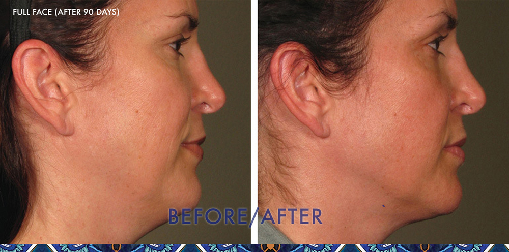 ultherapy face lift ResouLuna Orlando Before After