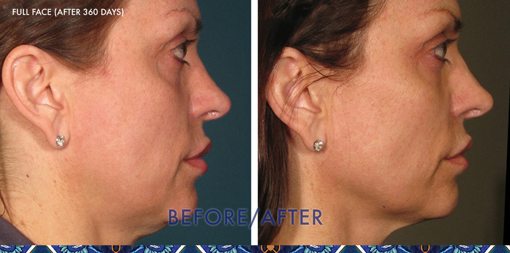 ultherapy chin lift doctor ResouLuna Orlando Winter Park FL