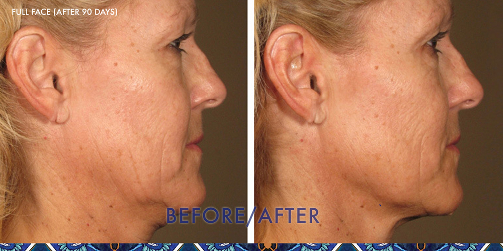 ultherapy lift ResouLuna Orlando younger looking skin