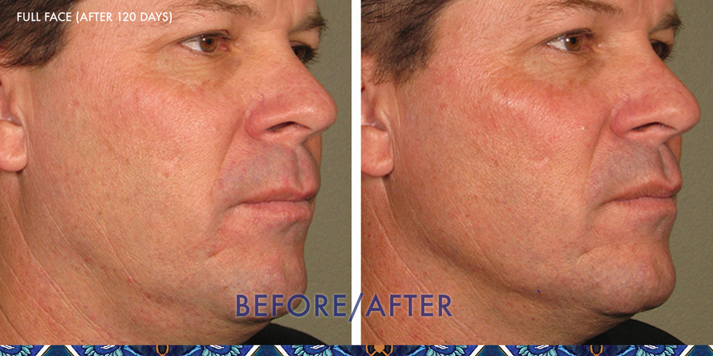 ultherapy cheeks lift ResouLuna Orlando Winter Park FL