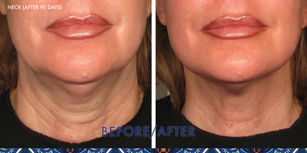 ultherapy lips chin ResouLuna Orlando Winter Park FL