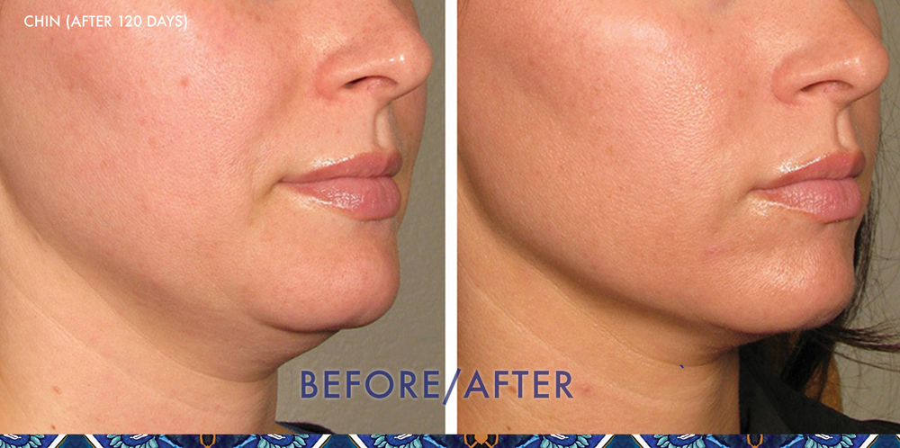 ultherapy neck lift ResouLuna Baldwin Winter Park FL Young
