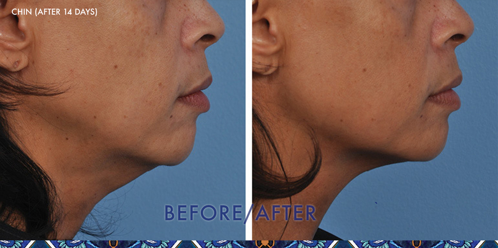 ultherapy face lift ResouLuna Orlando Winter Park FL
