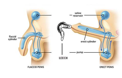Diagram Of Erect Penis