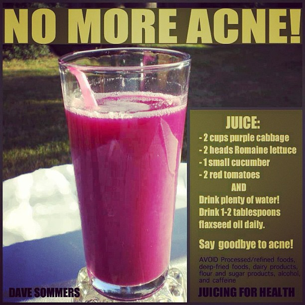 Who wouldn't love to get rid of acne even when it strikes once a month chicas?! Try this yummy juice and watch your skin glow.