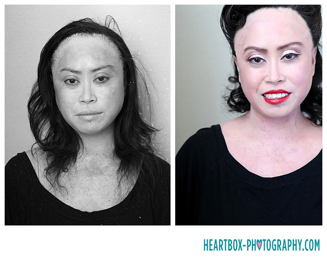 makeovers-for-women-psoriasis