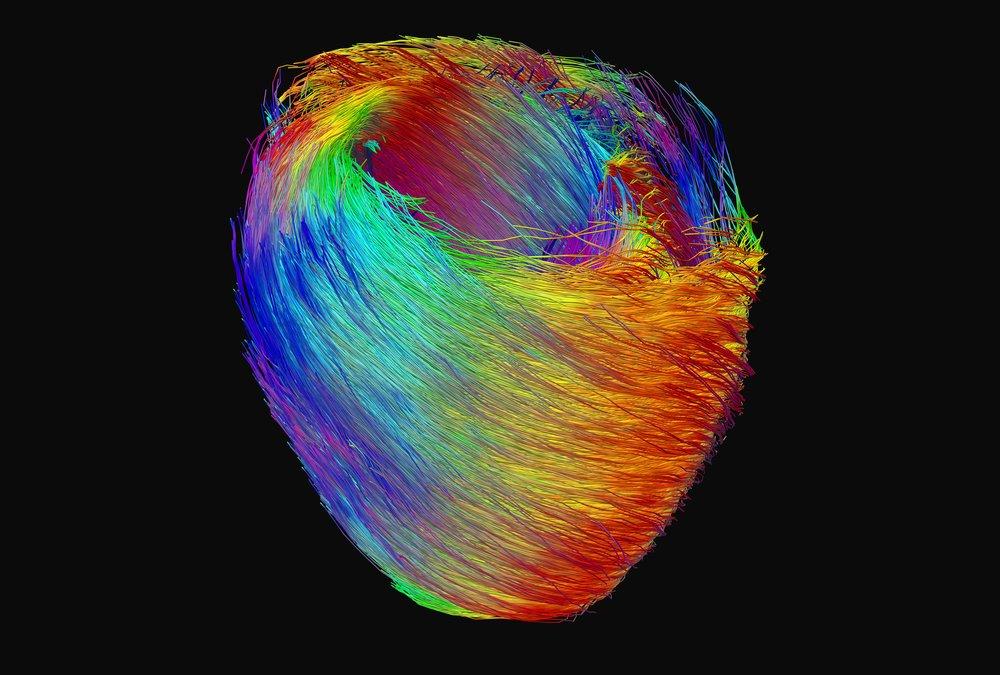 heartColour.jpg