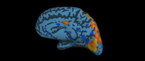 Brain showing the visual cortex
