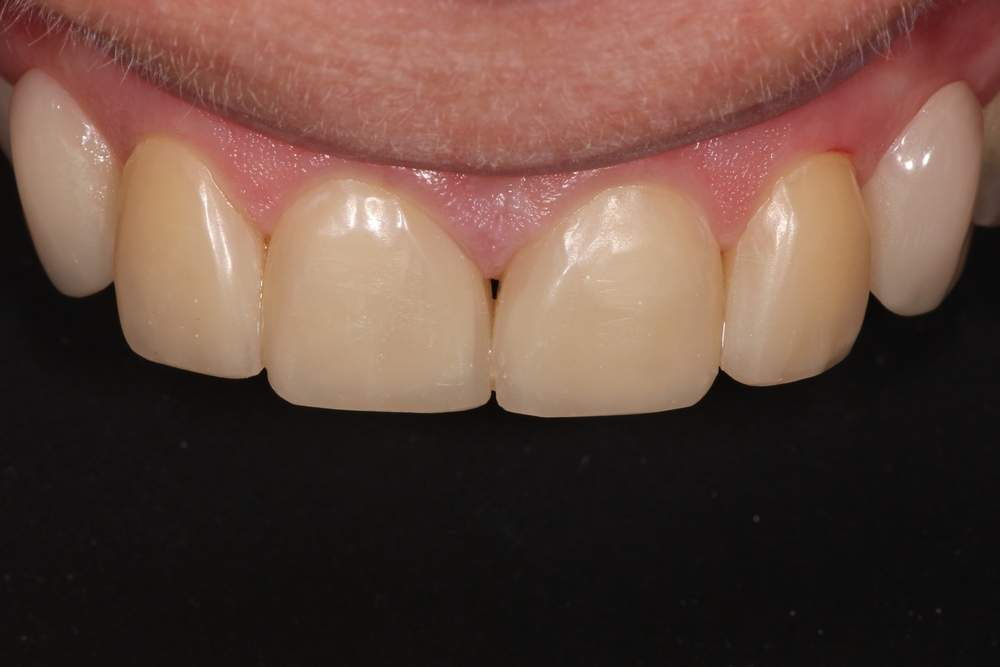 After (White Fillings & Partial Denture)