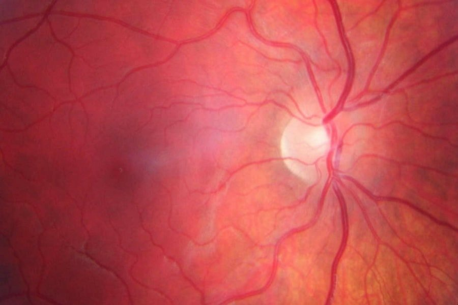 high resolution of the eye showing red blood vessels and the light used to view the eye in the background.
