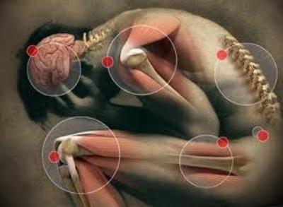 Pain-Map-oswego-massage-therapy.jpeg