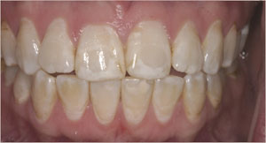 Cosmetic Dentistry Santa Fe NM