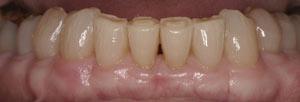 Cosmetic Dentists Santa Fe NM