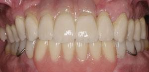 Best Dentist Santa Fe NM