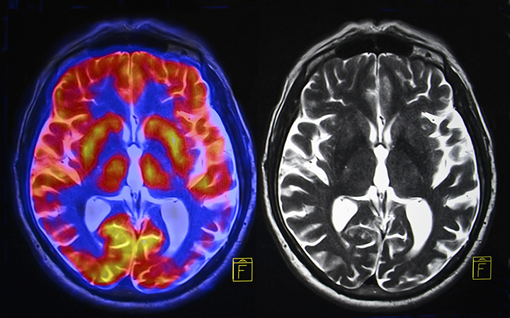 3BOQP01TOqAGLEF70esA_can-cannabis-prevent-treat-brain-injury-currently-suffering-from-TBI.jpg