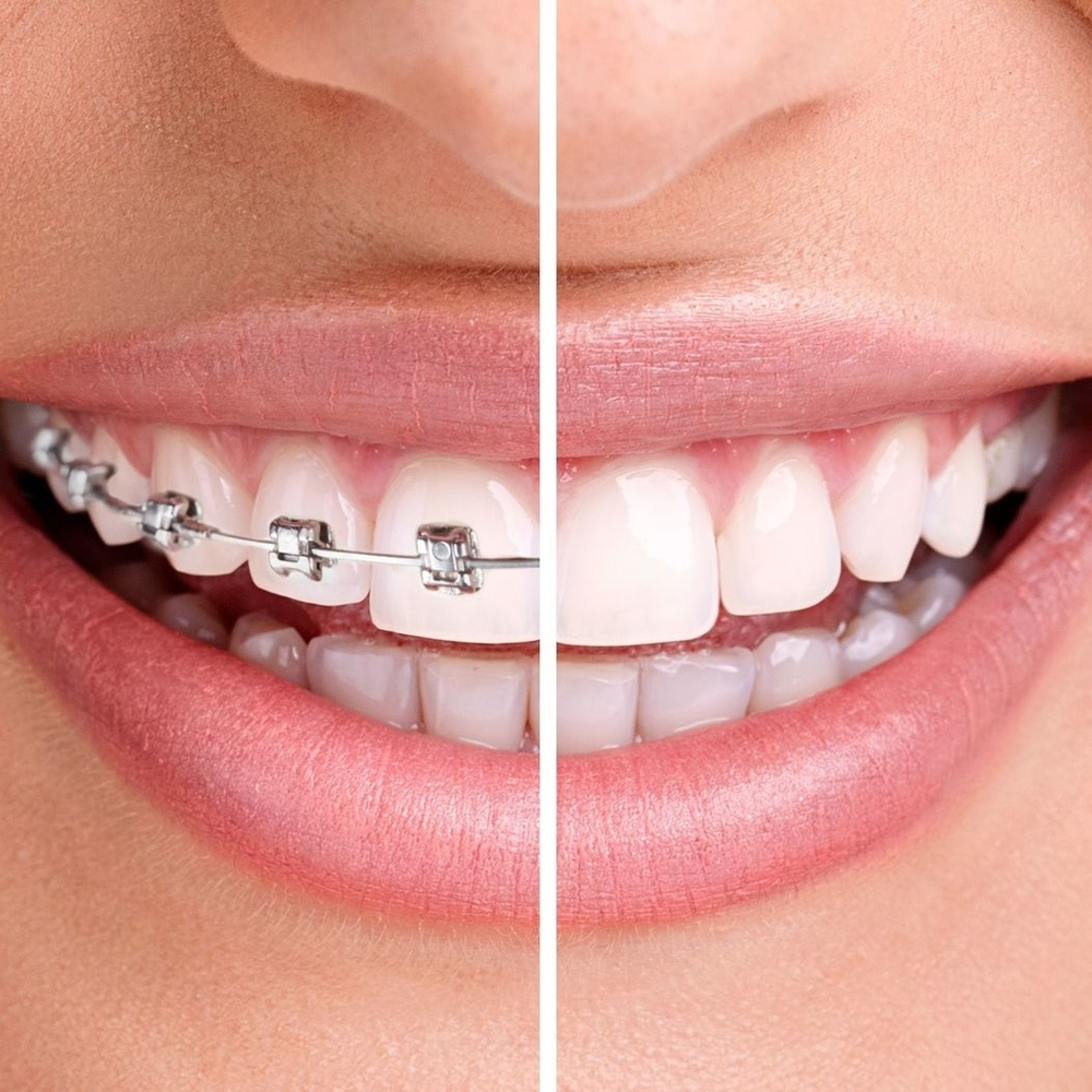 San-Diego-Invisalign-and-ClearCorrect.jpg