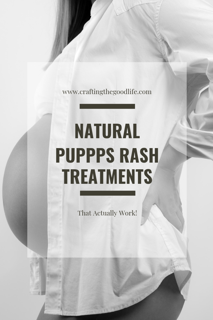 Natural PUPPPs Rash Treatment and Remedies for Real Relief