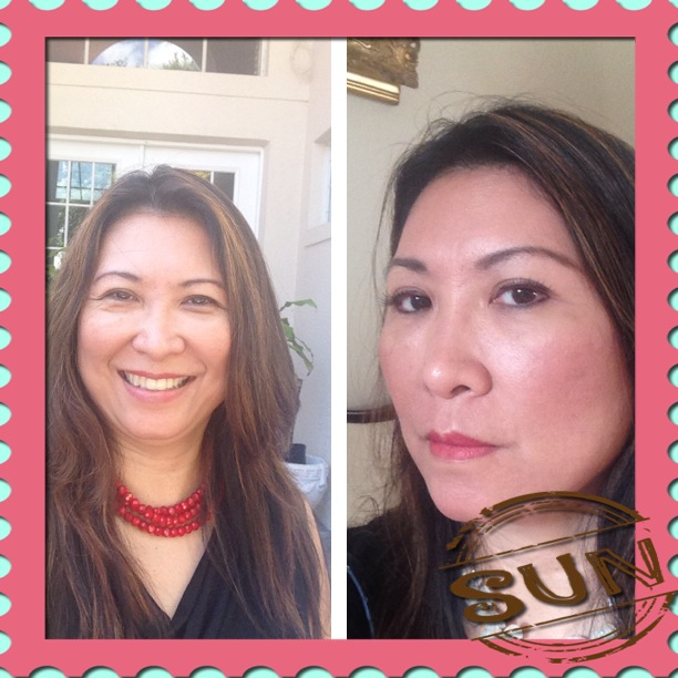 Dr. Magsino achieved great results herself with the Time Machine Procedure - before and after