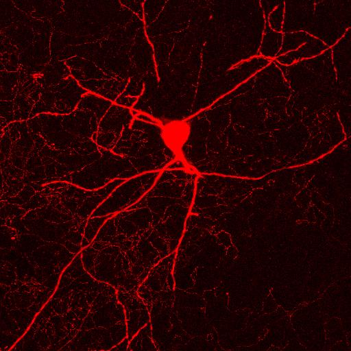 ChaT neuron v2.jpg