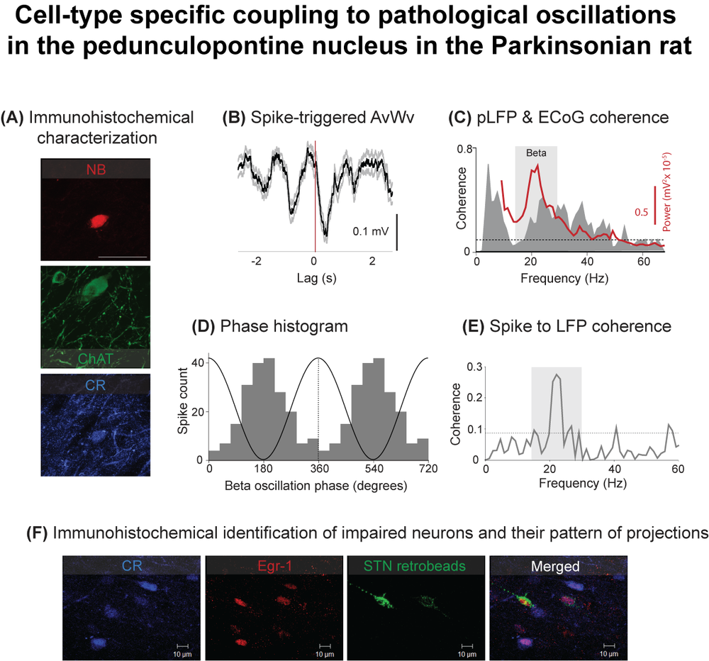 Cell type-specific impairment of neuronal activity in the PPN in the Parkinsonian rat (see Martinez-Gonzalez et al., 2014)
