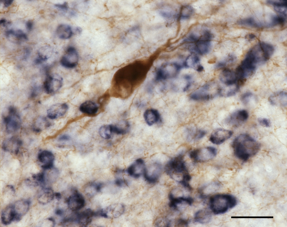 PPN cholinergic neurons are embedded in a network of GABAergic neurons (see Mena-Segovia et al., 2009)