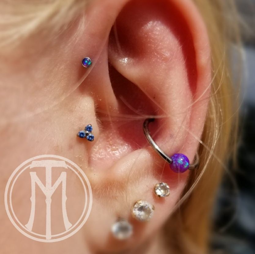 Helix Conch healed Trag.jpg