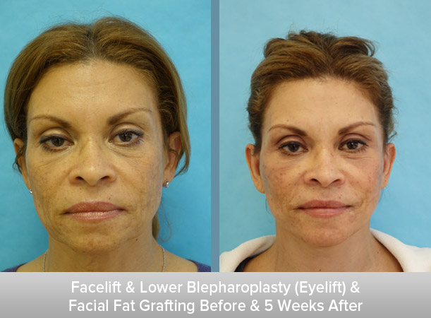 Facelift-+-Lower-Blepharoplasty-(Eyelift)-+-Facial-Fat-Grafting-5-Weeks-After.jpg