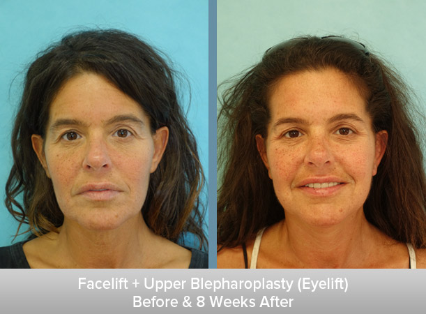 Facelift-+-Upper-Blepharoplasty-(Eyelift)-8-Weeks-After.jpg