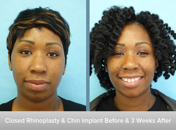 Closed-Rhinoplasty-+-Chin-Implant.jpg