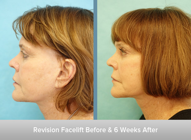 Revision-Facelift-and-After-2.jpg