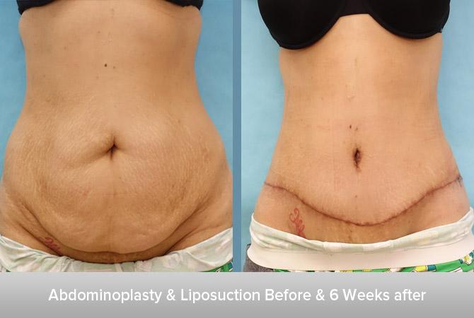Abdominoplasty-+-Liposuction-6-6-Weeks-after-2.jpg