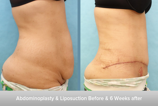 Abdominoplasty-+-Liposuction-6-6-Weeks-after.jpg