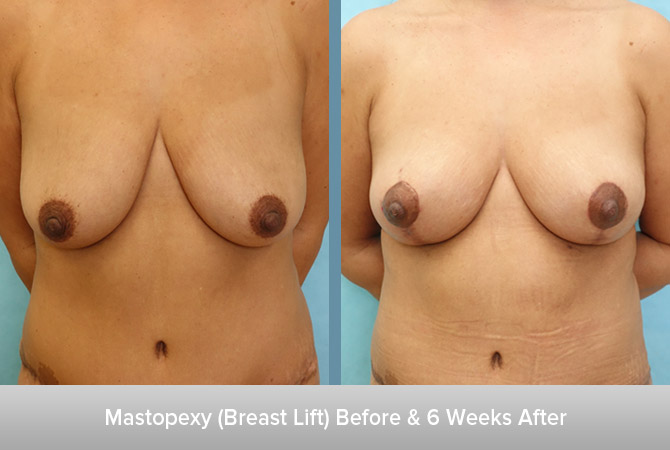Mastopexy-6-Weeks-After-2.jpg