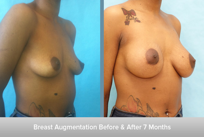 Breast-Augmentation-7-Months-2.jpg