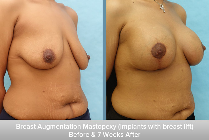 Breast-Augmentation-Mastopexy-(Implants-with-breast-lift)-2.jpg