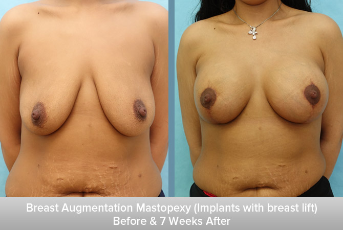 Breast-Augmentation-Mastopexy-(Implants-with-breast-lift).jpg