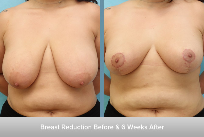 Breast-Reduction-6-Weeks-After-2.jpg