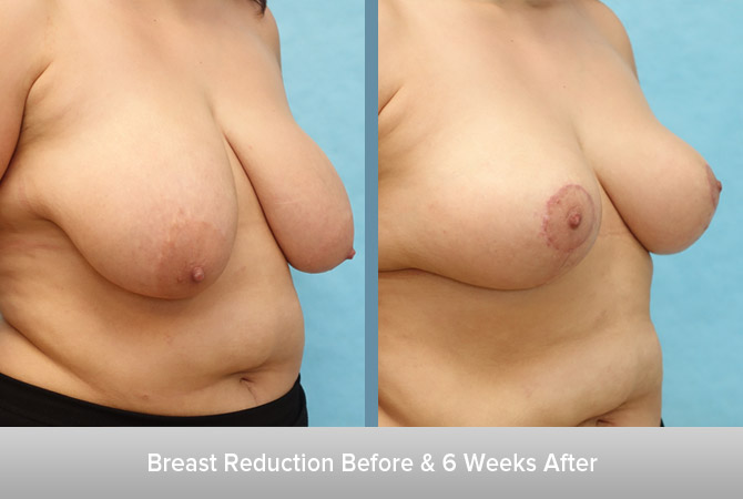 Breast-Reduction-6-Weeks-After.jpg