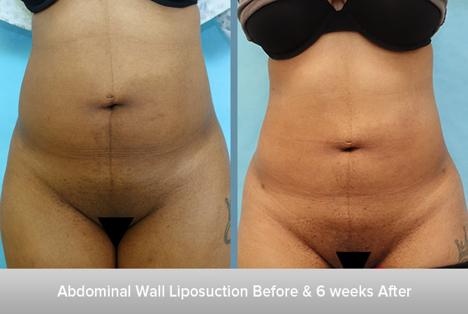 Abdominal-Wall-Liposuction-6-weeks-After.jpg