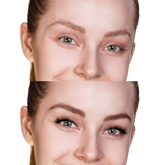 Eyelash Growth Dr Cormac Aesthetic Medicine