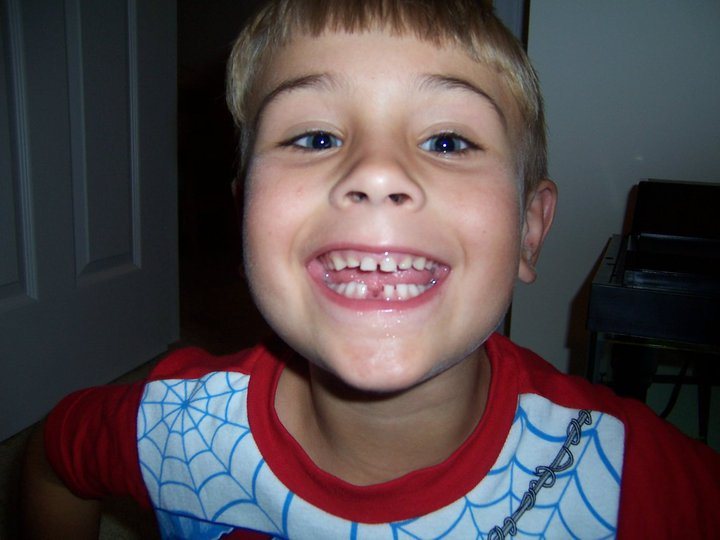 2010 E's first tooth.jpeg