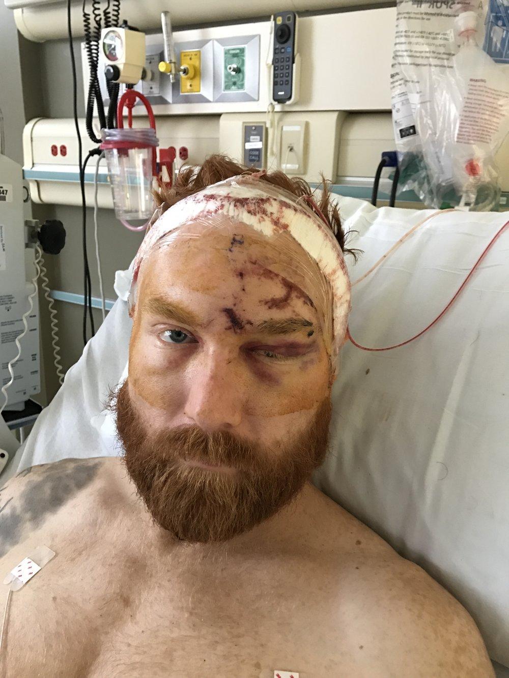 After first surgery