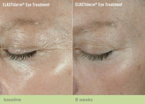 revive-cosmetics-elastiderm-eyetreatment