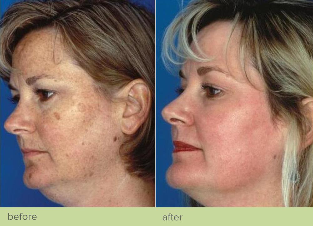 revive-cosmetics-obagi-nu-derm-blue-peel
