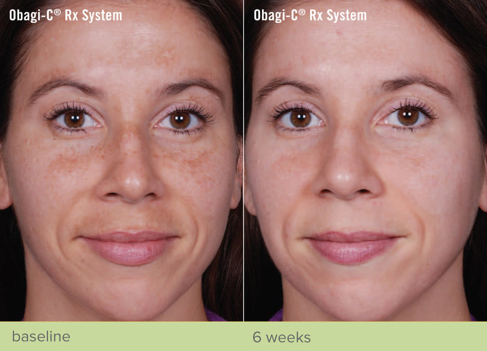 revive-cosmetics-obagi-nu-derm-RxSystem