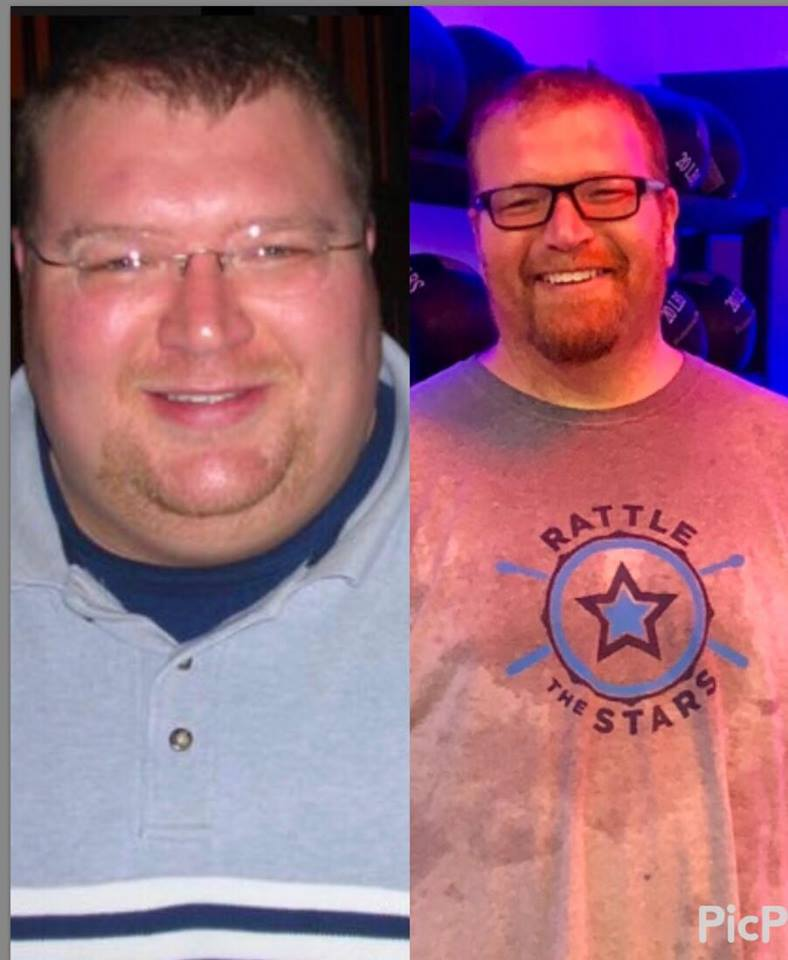 I weighed over 488 lb, was diabetic and my blood pressure was extremely high even while taking 3 different medications to treat it. Click here for full story!
