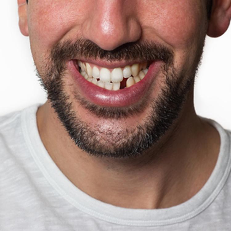 toothloss.jpg