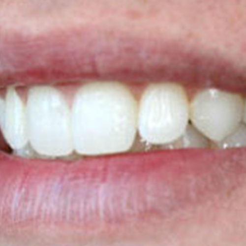 clearbraces2.jpg